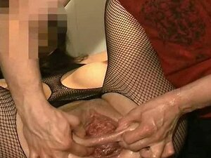 Anal and vaginal fisting destruction